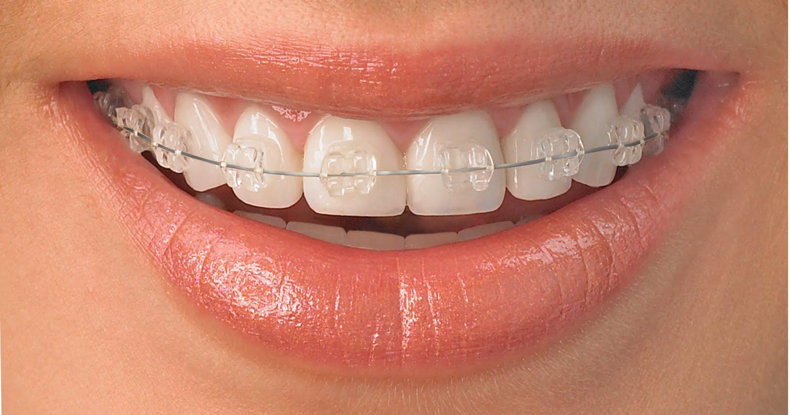 https://dentalspa.com.ua/wp-content/uploads/2017/12/Ortodontiya.jpg