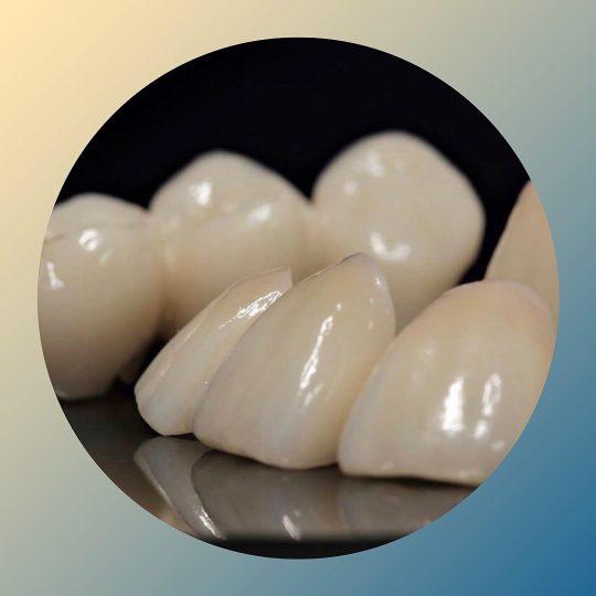https://dentalspa.com.ua/wp-content/uploads/2019/07/izobrazhenie_viber_2019-07-11_15-29-55-540x540.jpg